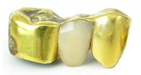 verkaufen Sie ihr Zahngold oder tauschen Sie gegen Goldmünzen oder Goldbarren